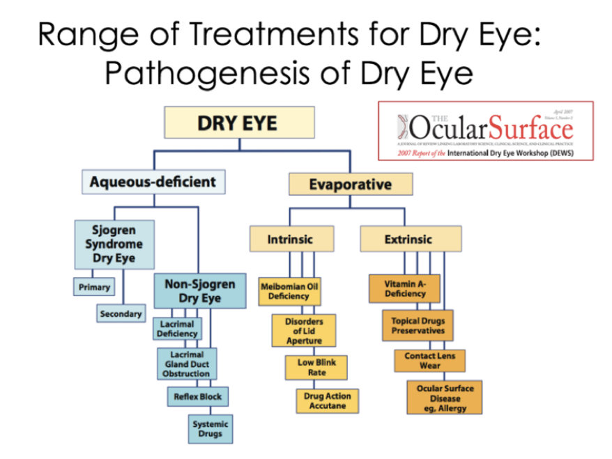 Treatments-for-dry-eye